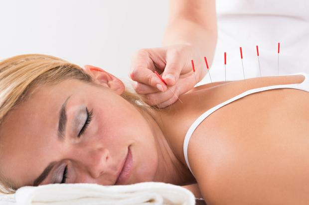 Acupuncture has been used in Chinese medicine for centuries. Could it help you?